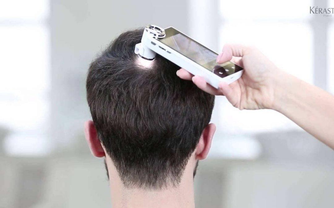 Sobre el cuero cabelludo